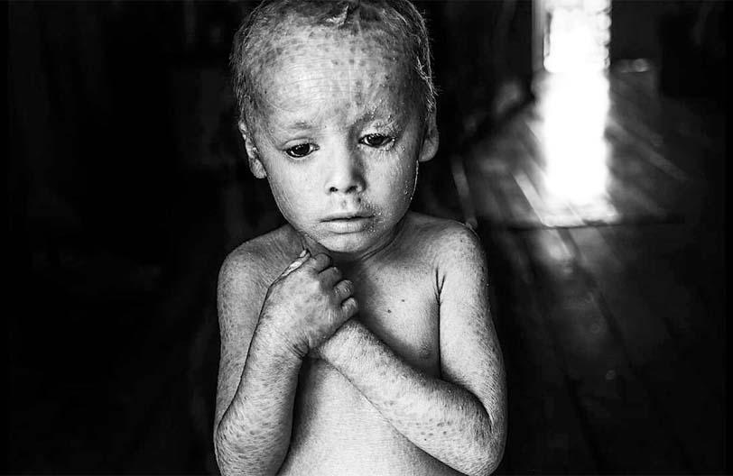 """Se presenta """"El costo humano de los agrotóxicos"""" el domingo en el NAC"""