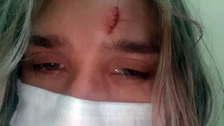 Fray Luis Beltrán: el ex novio la encerró y le propinó una brutal golpiza